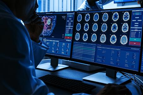 De nouveaux implants cérébraux qui s'annoncent révolutionnaires dans la lutte contre les maladies neurologiques